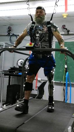 Künstliche Intelligenz bringt Bewegung in die Welt der Prothesen